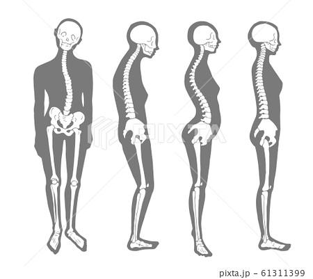 悪い姿勢のパターン 骨格とシルエット